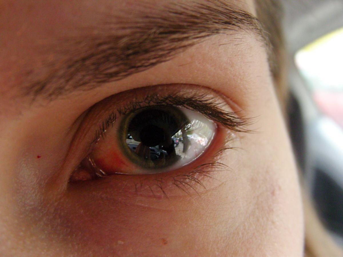 Может ли боль в глазах быть симптомом коронавируса?