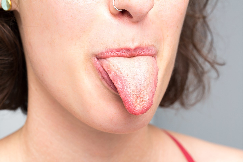 Как определить здоровье и болезни по языку?