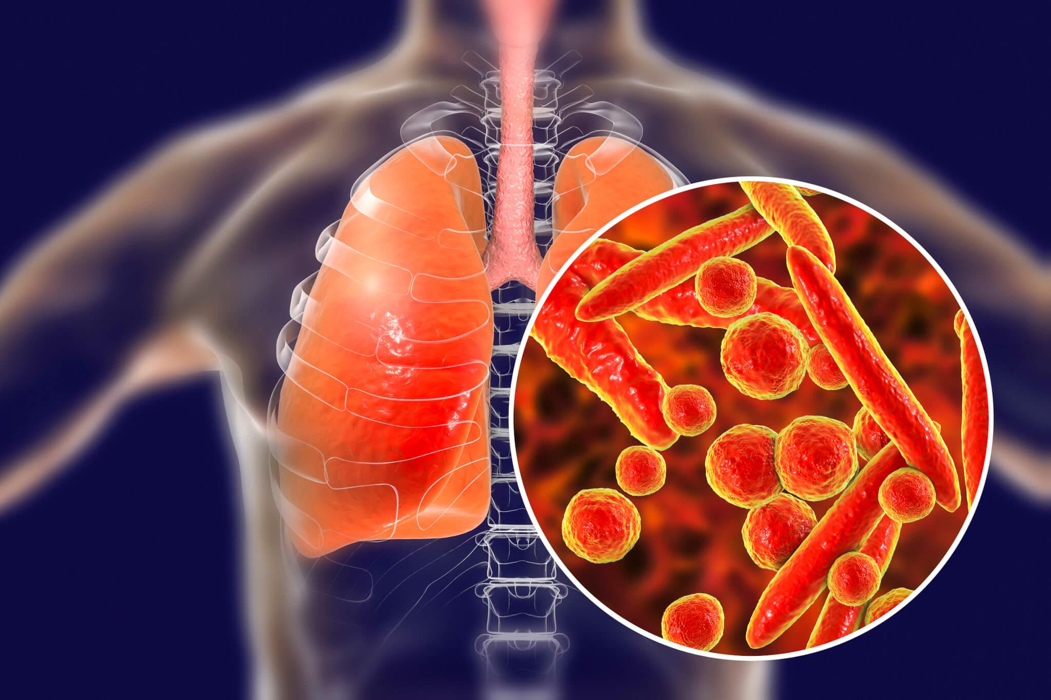 Из-за чего может появиться пневмония?