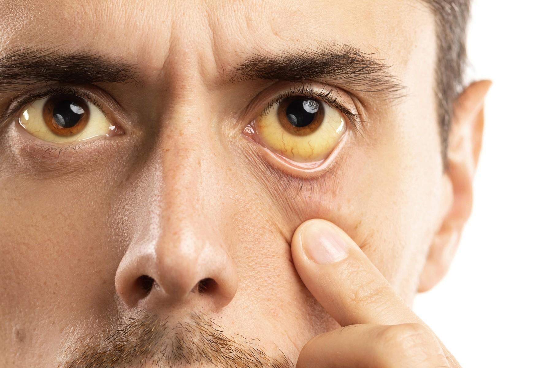 Признаки опасных болезней, о которых вам расскажет лицо