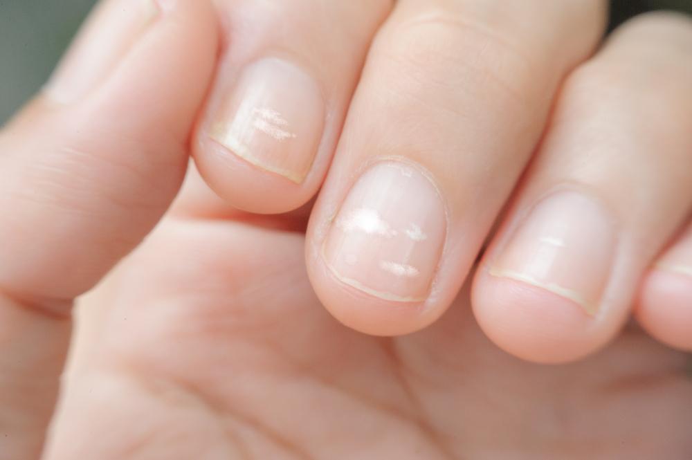 Что означают белые полоски на ногтях?