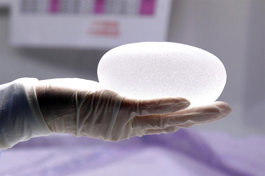 4 мифа о грудных имплантах