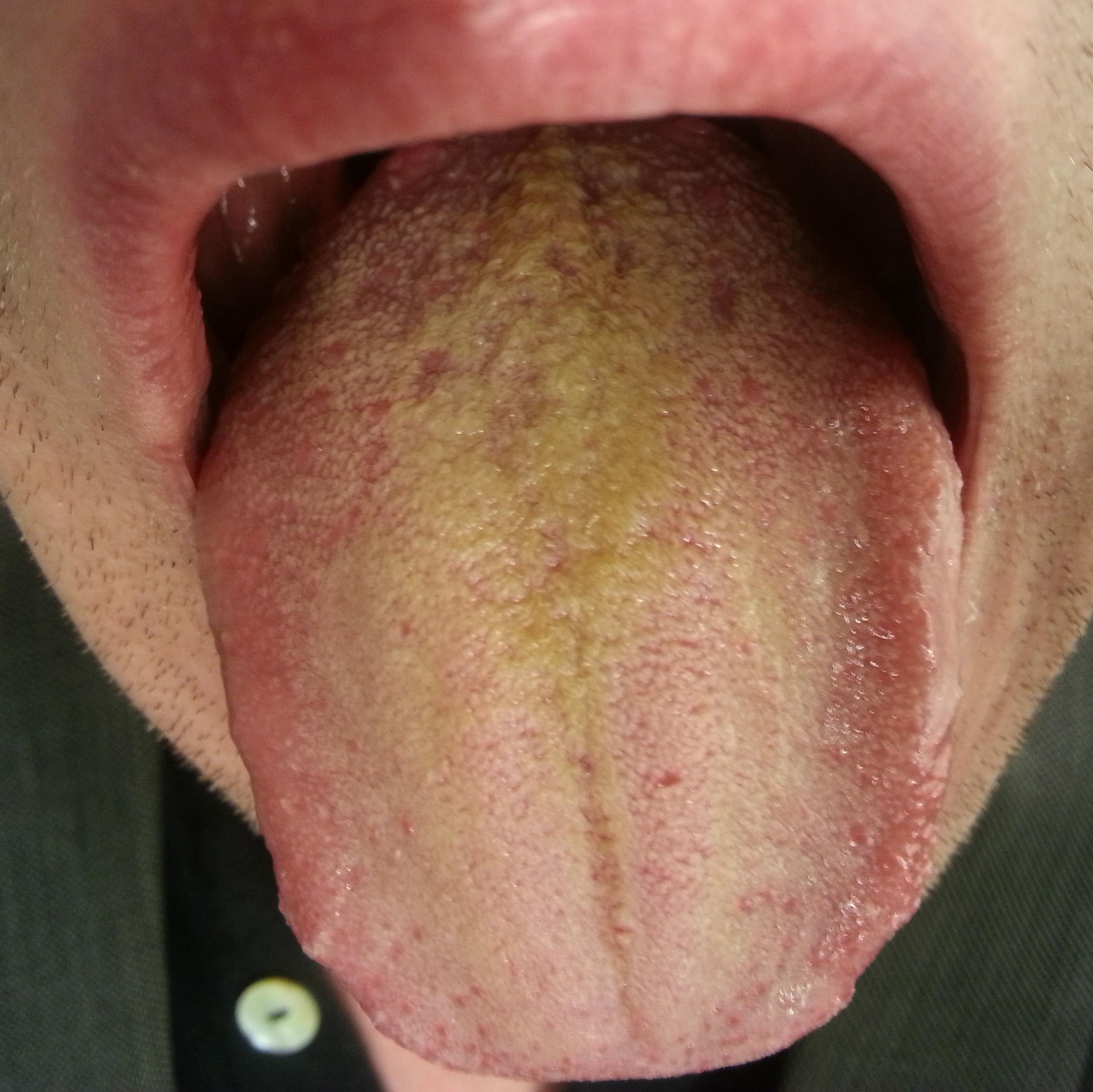 Металлический привкус во рту - признак болезни