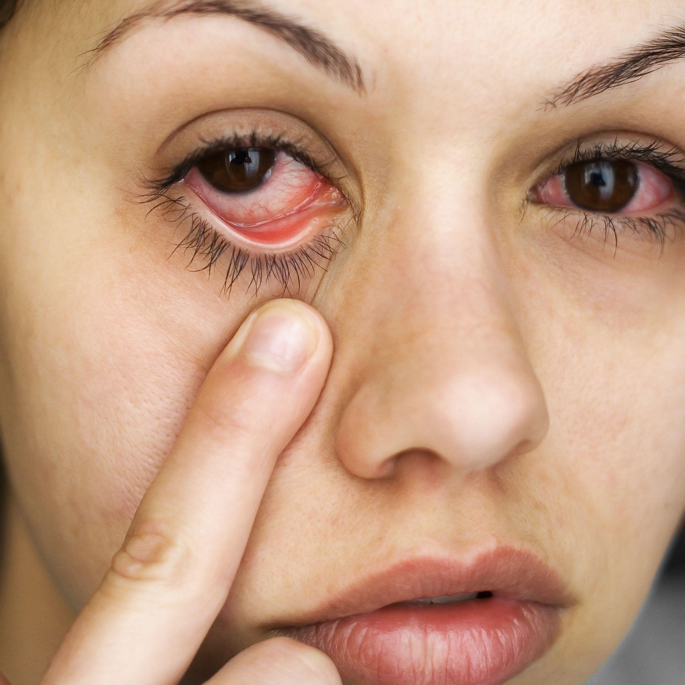 Какие недуги мы часто путаем с аллергией?