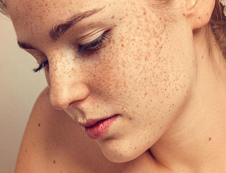 Дерматолог-косметолог рассказала о причинах пигментации и о влиянии солнца на старение кожи