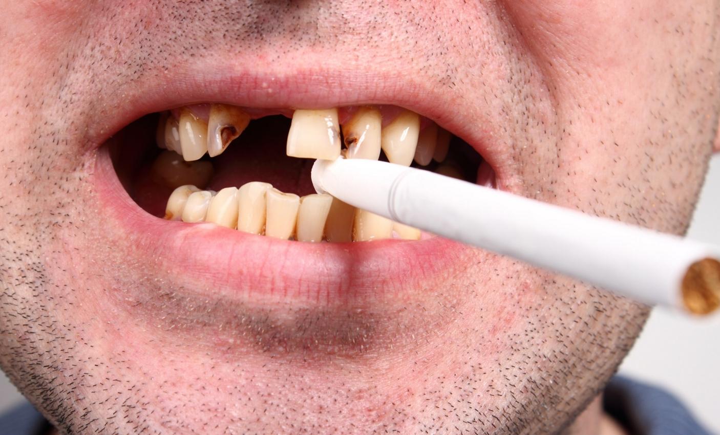 Стоматологи назвали опасные для здоровья зубов привычки