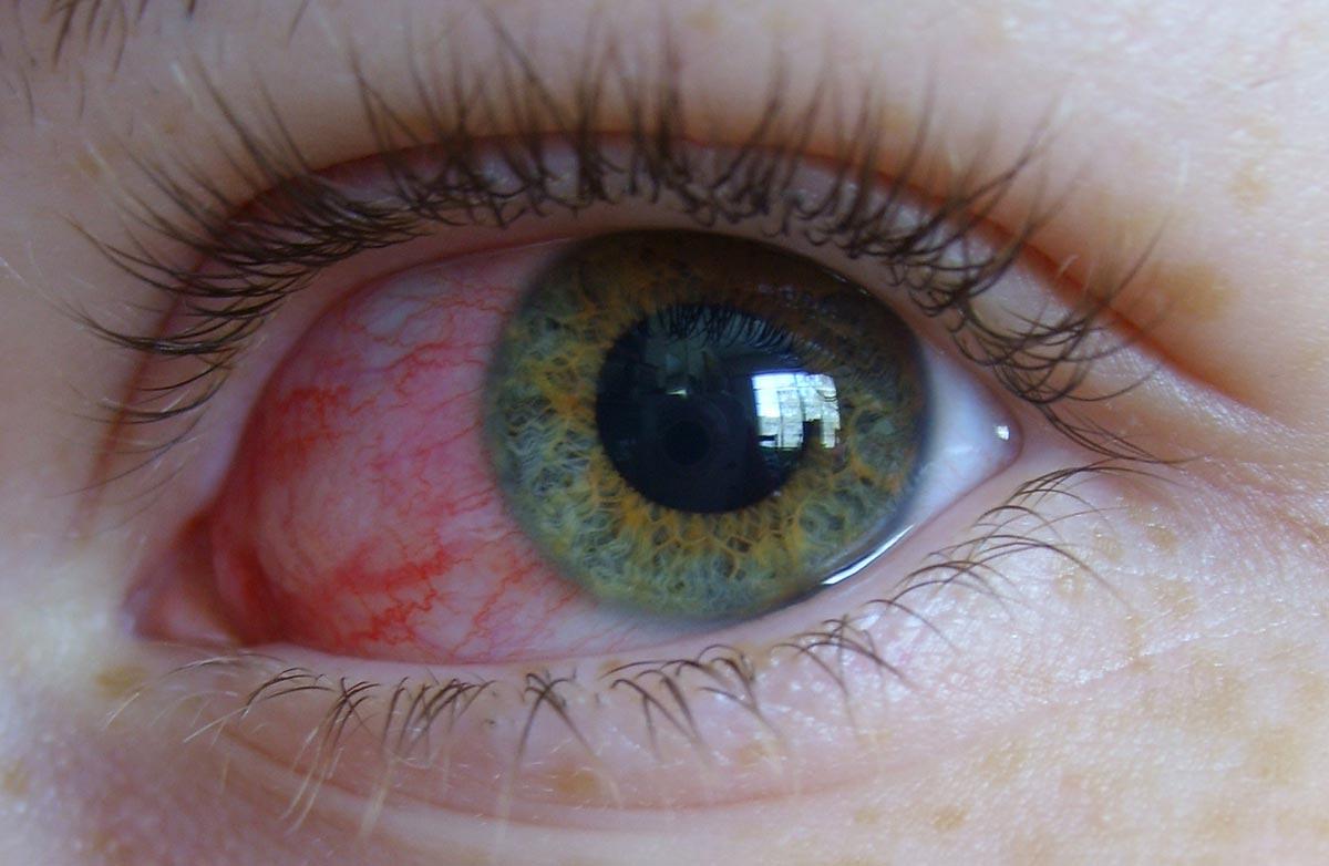 Болезни, о которых можно узнать по состоянию глаз