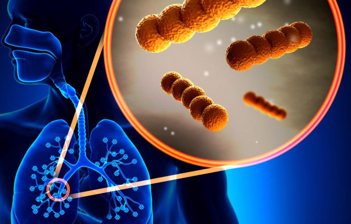 Что следует знать о бубонной чуме?