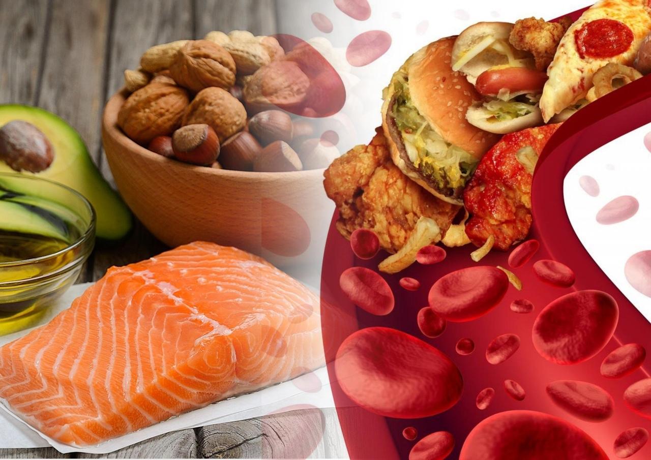 Что делать при высоком уровне холестерина?