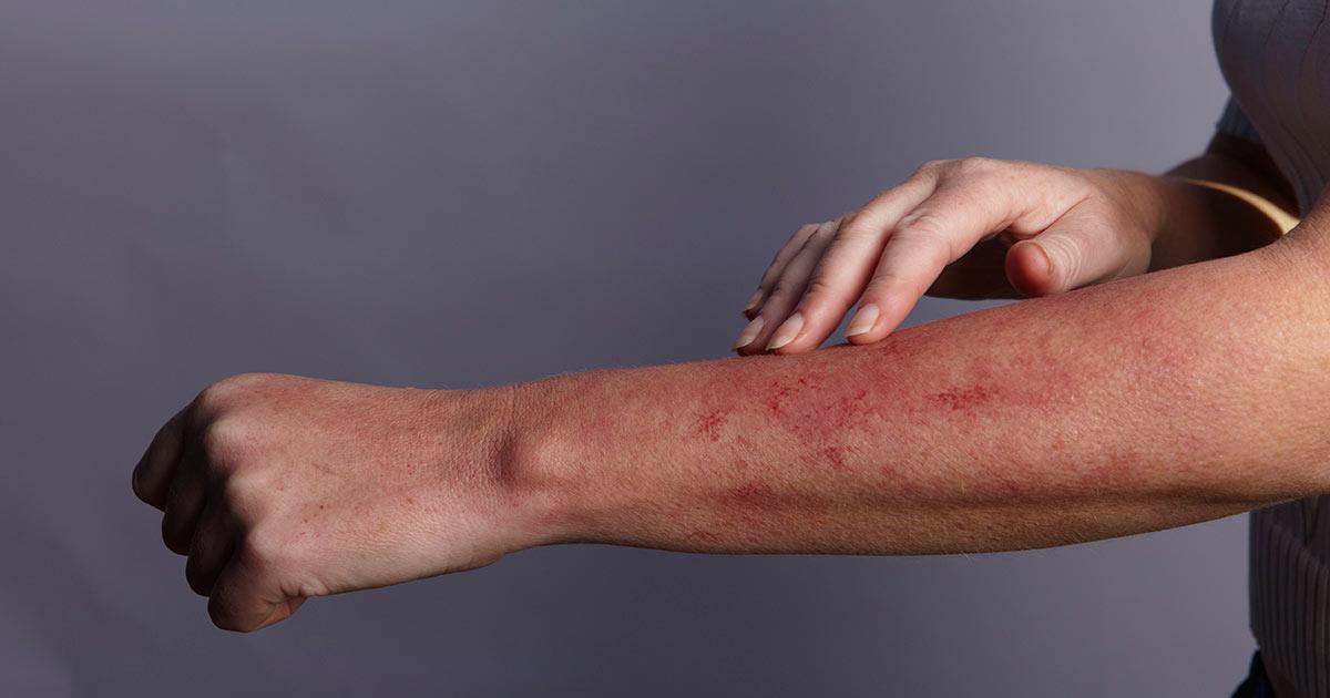 Признаки скрытого заражения крови