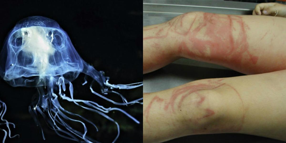 Чем опасен укус медузы и что с ним делать?
