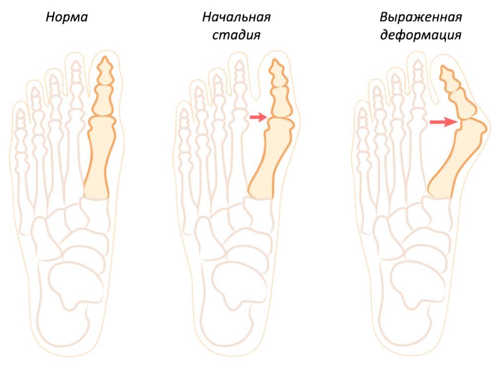 Почему растёт «шишка» на ноге?