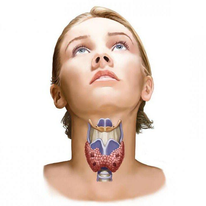 Не очевидная симптоматика болезней щитовидной железы