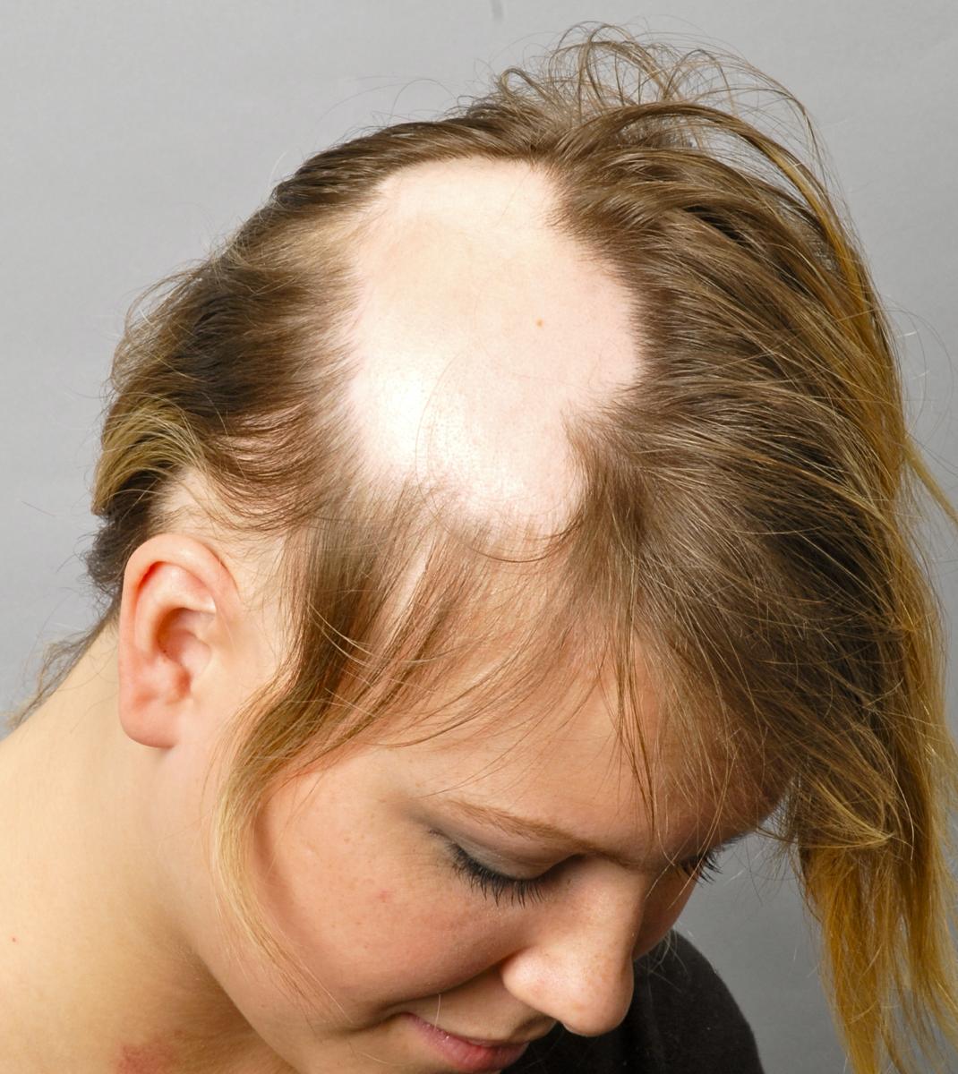 Болезни, сопровождающиеся выпадением волос