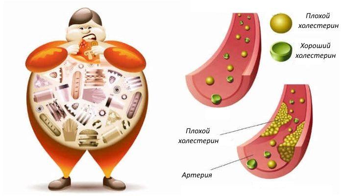 """Боремся с """"плохим"""" холестерином — как вывести его из организма"""