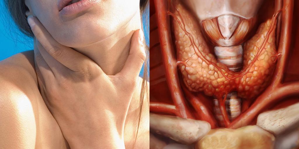 Мифы о щитовидной железе, которые вводят в заблуждение