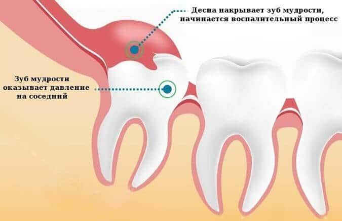 Особенности зубов мудрости, стоит ли их вырывать или лечить