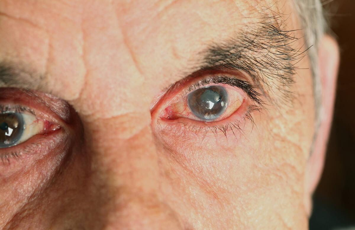Болезни, которые можно увидеть по глазам